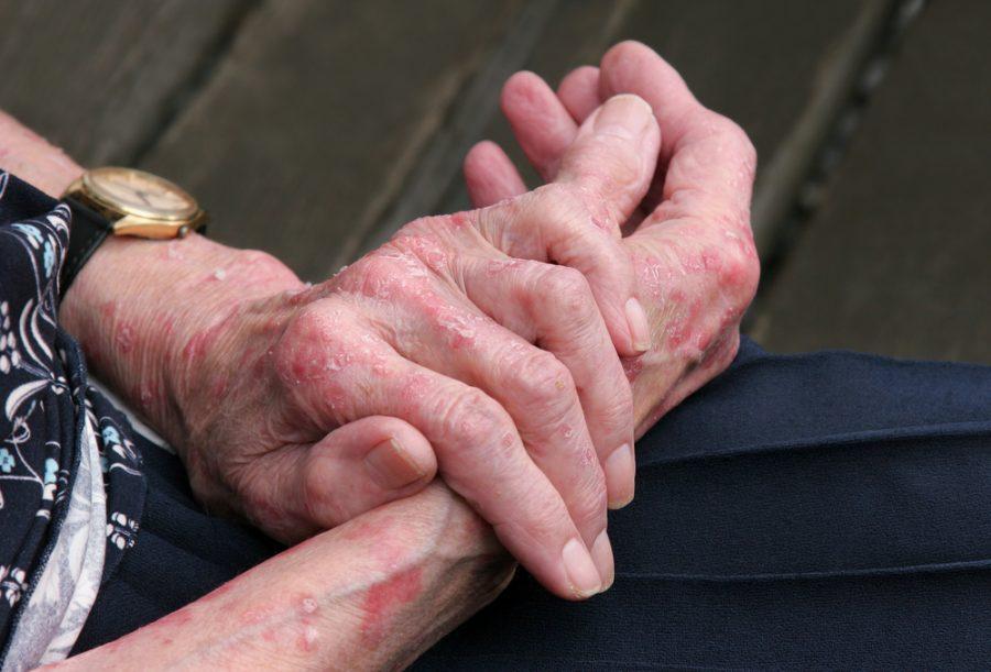 Chàm bàn tay ảnh hưởng nhiều đến người bệnh