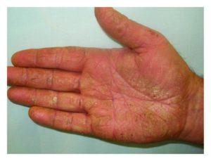 Nấm bàn tay thể khô sừng hóa